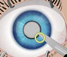 Eye Surgery Game